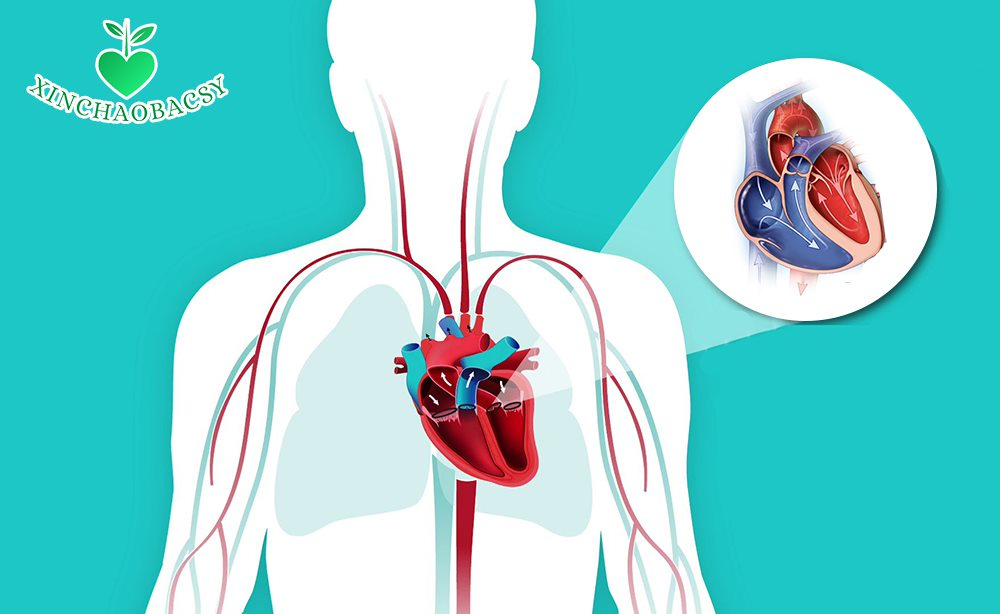 Thận trọng với hở van động mạch phổi để tránh biến chứng suy tim